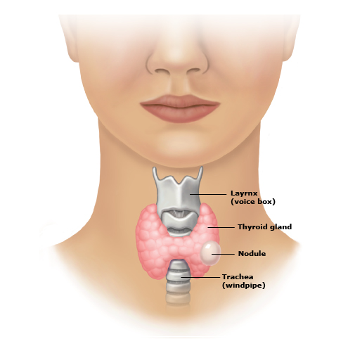 Thyroid Nodule Downriver Ent